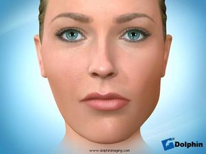 Facial Asymmetry (Mandible)