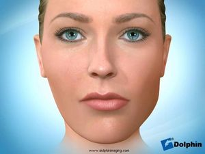 Facial Asymmetry Surgery (Mandibular)
