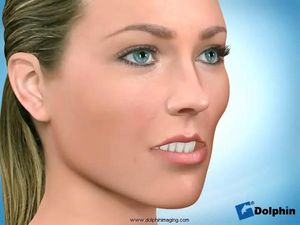Mandibular Splint (Bruxism)Maxillary Advancement Surgery