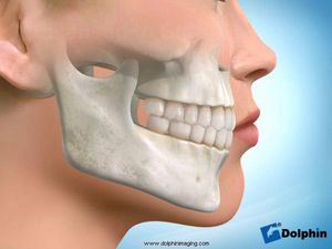 Maxillary Splint (Diagnostic)